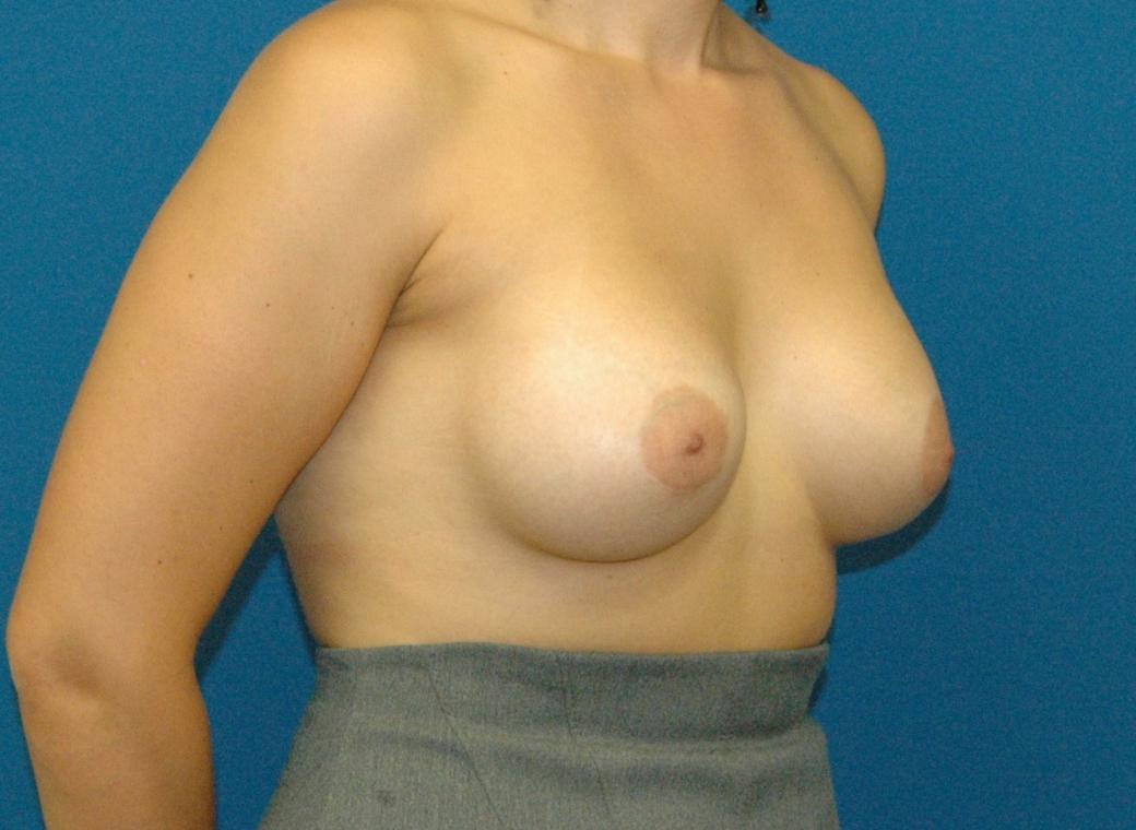 185 women naked